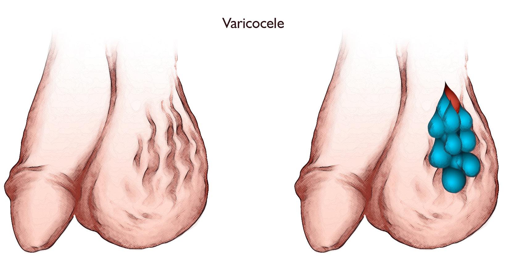 Corrección de varicocele